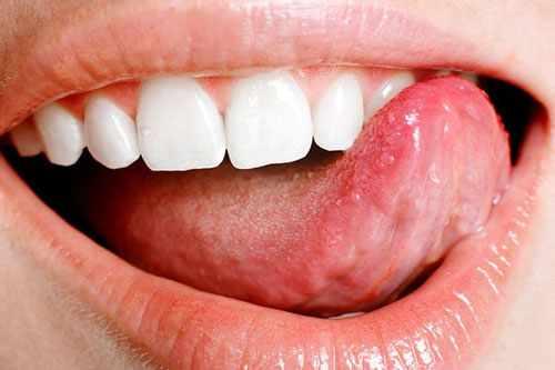 Покусывание языка