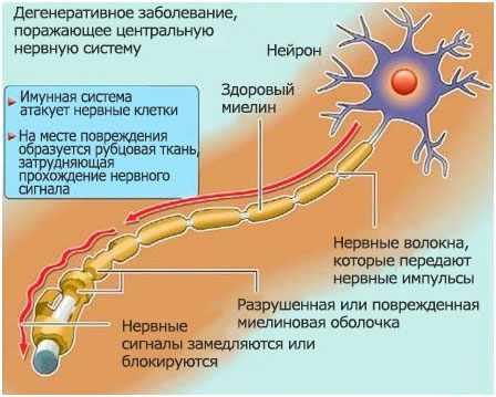 razvitie-rassejannogo-skleroza