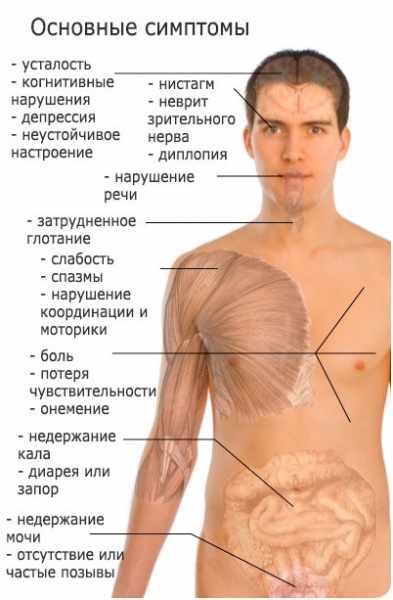 simptomy-rassejannogo-skleroza